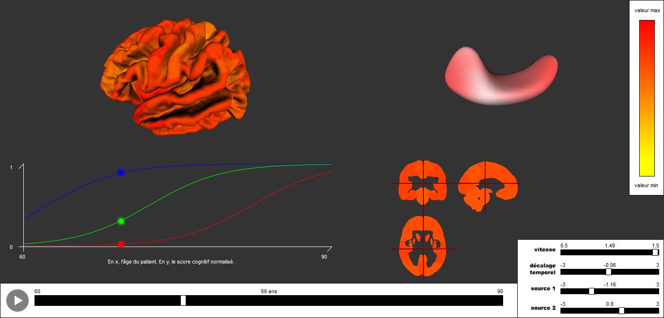 Digital Models of the Human Brain – Data Science for Neurology